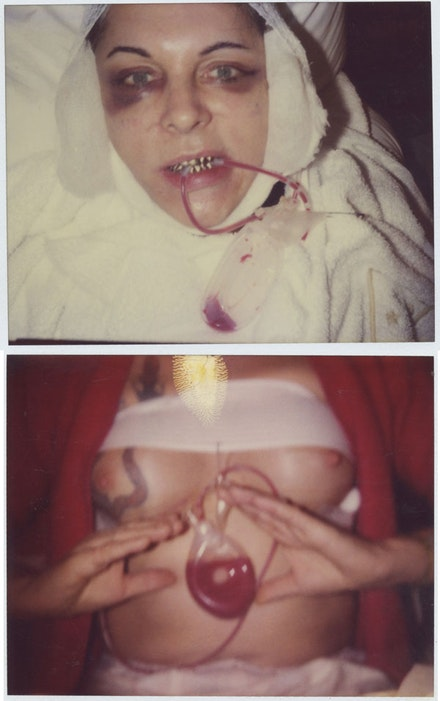 BREYER P-ORRIDGE Pandrogyne Surgeries, polaroids 2003. Photo by BREYER P-ORRIDGE.