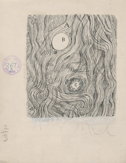 Santiago Ramón y Cajal, <i>Tumor cells of the covering membranes of the brain</i>, 1890. Ink and pencil on paper, 6 1/4 x 5 inches. Cajal Institute (CSIC), Madrid.