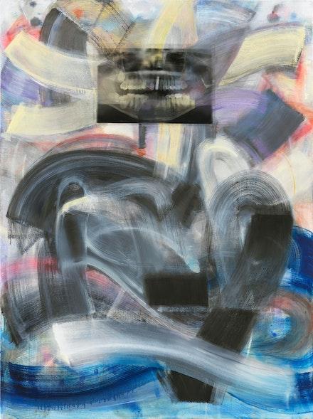 Mary Jones, <em>2020</em>, 2020. Oil, spray paint, X-ray acetate print on canvas, 64 x 48 inches. Courtesy High Noon, New York.